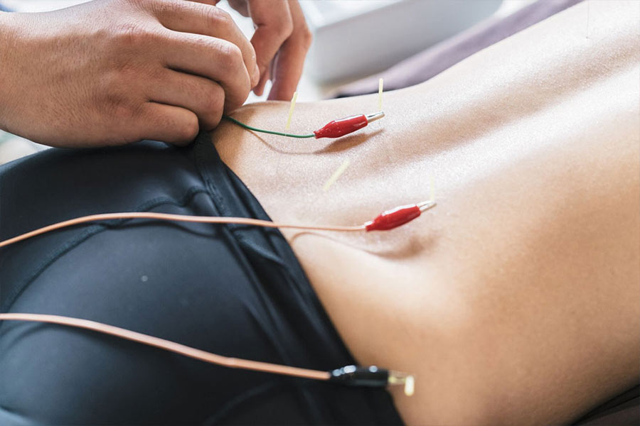 Electro Acupuncture